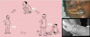 কৃমি রোগ বা হেলমিনিথিয়াসিস (Helminthiasis)