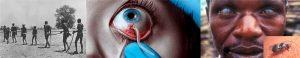 নদীর অন্ধত্ব (River blindness or Onchocerciasis)