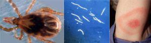 লাইম রোগ (Lyme disease)
